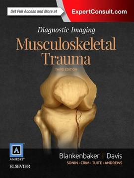 Musculoskeletal trauma by Donna G Blankenbaker