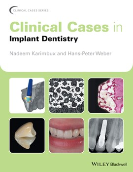Clinical cases in implant dentistry by Nadeem Karimbux