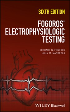 Electrophysiologic testing by Richard N. Fogoros