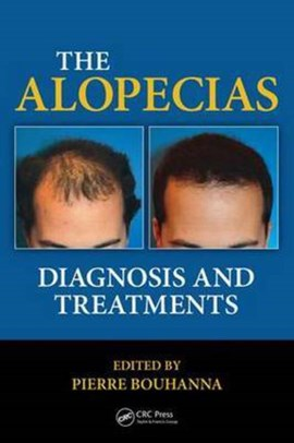 The alopecias by Pierre Bouhanna