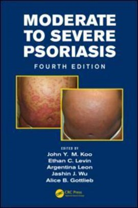 Moderate to severe psoriasis by John Y. M. Koo
