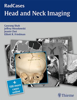 Head and neck imaging by Gaurang Vrindavan Shah