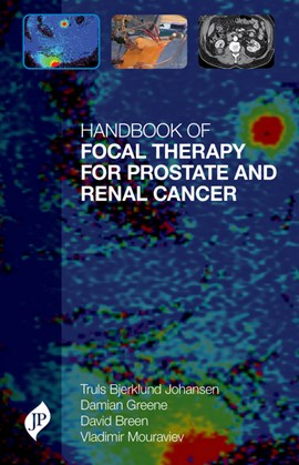 Handbook of focal therapy for prostate and renal cancer by Truls Bjerklund Johansen
