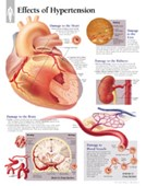 Effects of Hypertension Paper Poster
