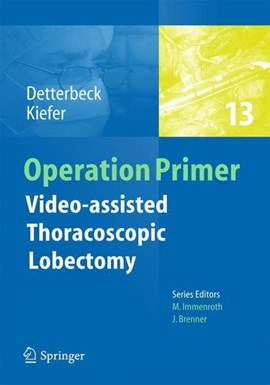 Video-assisted thoracoscopic lobectomy by Frank C. Detterbeck