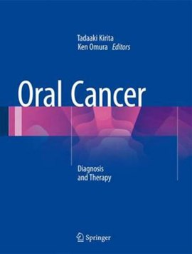 Oral cancer by Tadaaki Kirita