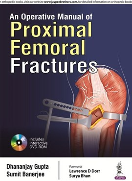 An operative manual of proximal femoral fractures by Dhananjay Gupta