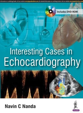 Interesting cases in echocardiography by Navin C Nanda