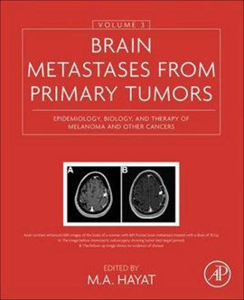 Brain metastases from primary tumors Volume 3 by M. A. Hayat