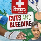 My first aid guide to cuts and bleeding